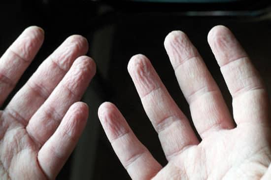Pruney Hands